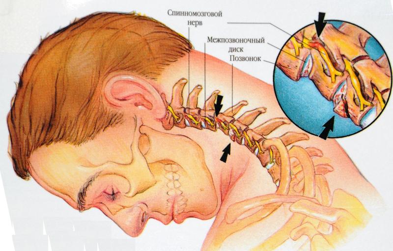 Хруст в шее и головокружение